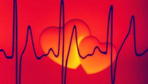 Jakie informacje otrzymamy dzięki badaniu aparatem EKG?